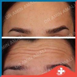 دکتر امین آمالی ، جراح و متخصص گوش و حلق و بینی ، دانشیار دانشگاه علوم پزشکی تهران ، جراحی زیبایی بینی و صورت ، اندوسکوپی سینوس ، جراحی اختلالات خواب – تزریق ژل – بوتاکس – تزریق بوتاکس - دیسپورت