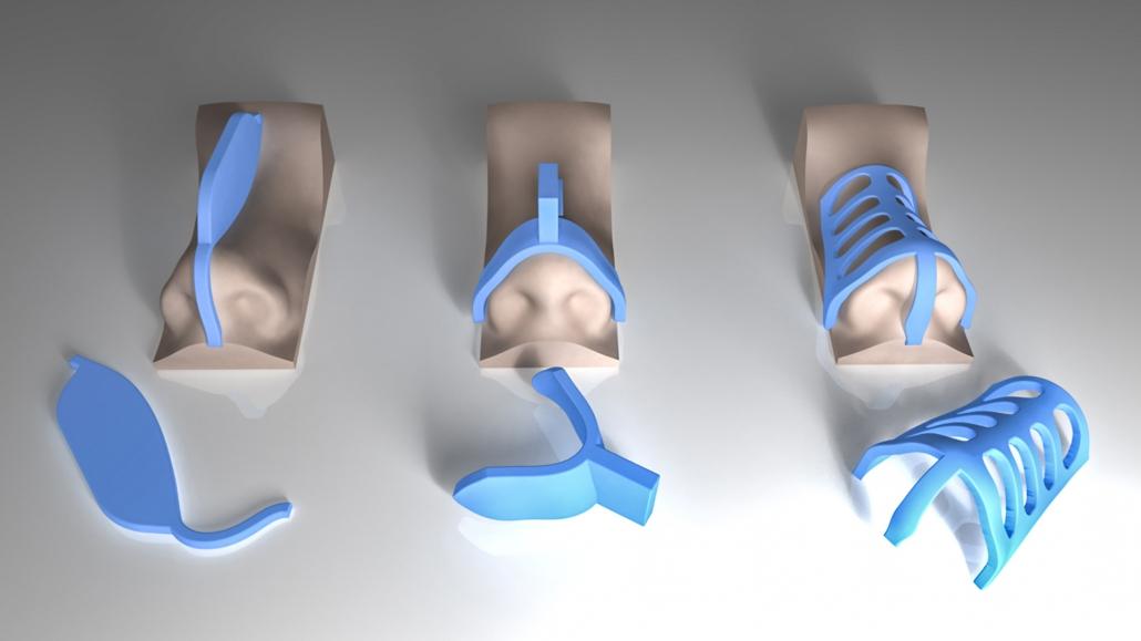 جراحی بینی با قالب های کنترلی