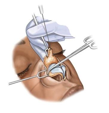 جراحی بینی به روش باز یا بسته؟