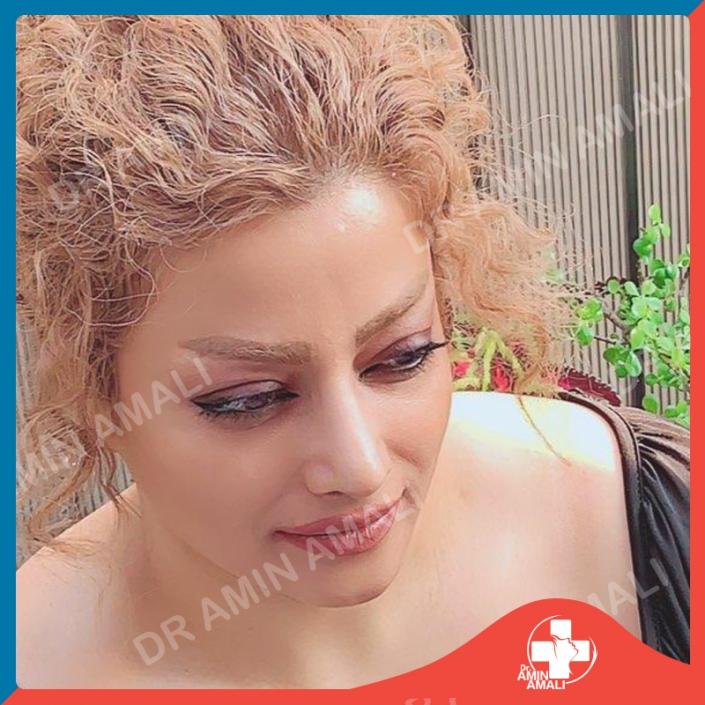 جراحی بینی ، rhinoplasty