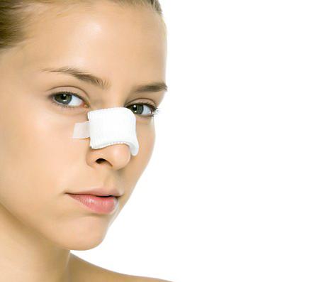 Broken nose - Nasal fractures