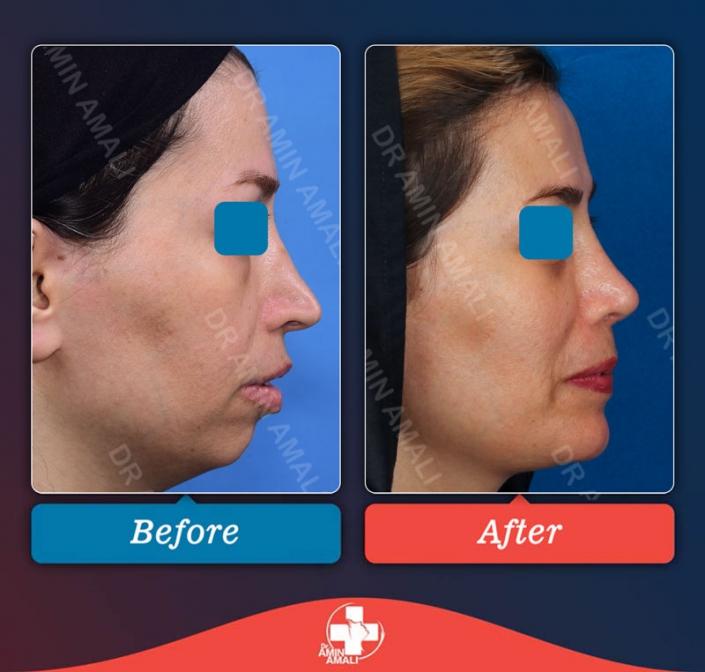 جراحی بینی - رینوپلاستی - rhinoplasty - revisionrhinoplasty - جراحی ترمیمی بینی