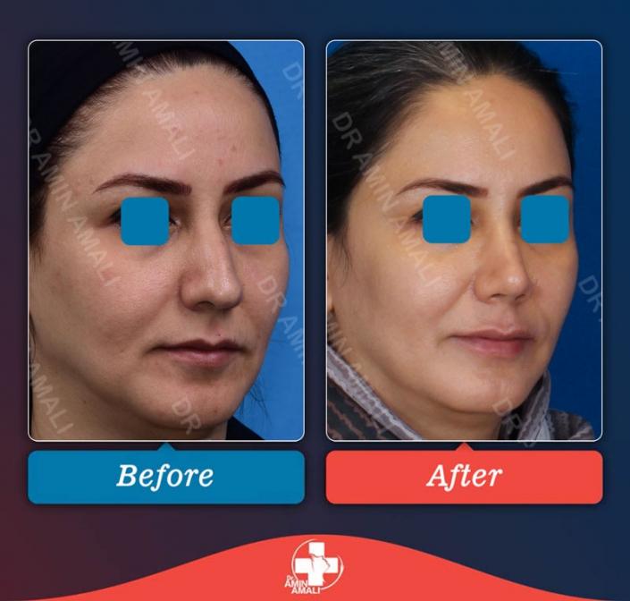 جراحی بینی, rhinoplasty