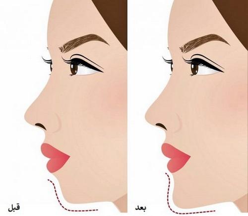 جراحی زیبایی چانه - جینوپلاستی